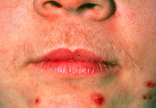 Hirsutism (excessive hairiness) on a woman's face