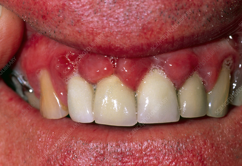 bruised gums pictures