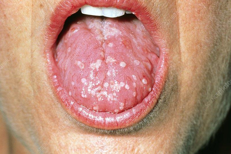 Mild Herpes Tongue
