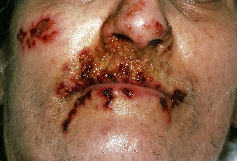 herpes mouth sores pictures. Caption: Herpes sores around a