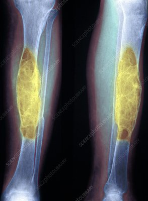 Brown tumours, X-ray