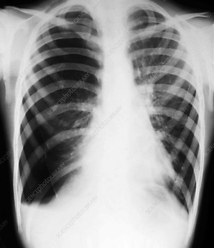 Hydropneumothorax, X-ray