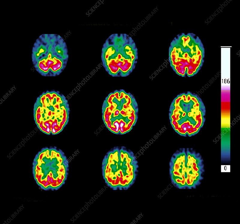 Huntingtons disease, SPECT scans