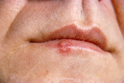 Herpes Cold Sore