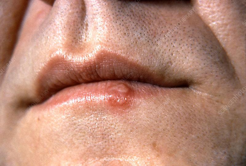 herpes simplex 1. Herpes+simplex+1+on+lips