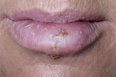 diagnosis of herpes simplex infection