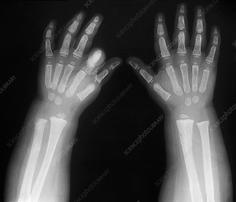 Hypothyroidism  X-ray - Stock Image M170  0385
