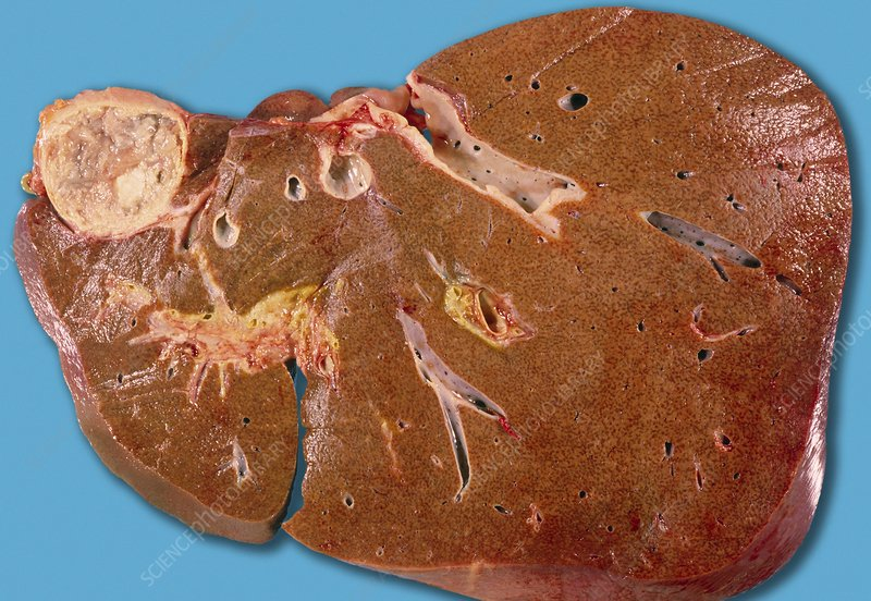 hydatid cyst of liver - stock image m170/0410 - science photo library, Human Body