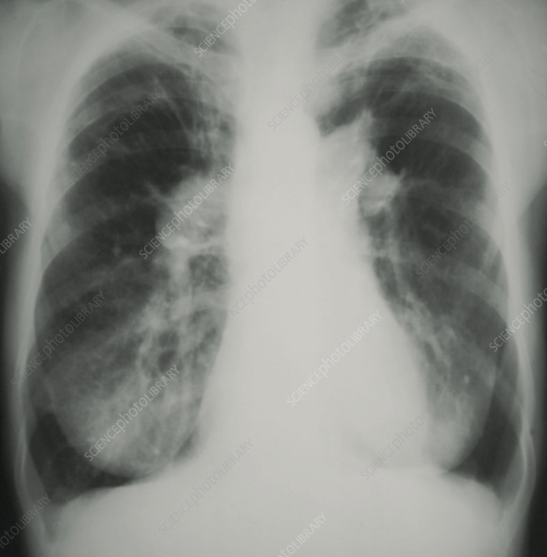 Pulmonary hypertension, X-ray