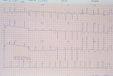 ECG showing aortic stenosis.