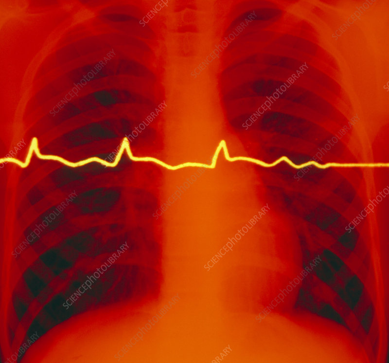 Chest X-ray and ECG trace