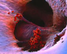 False-colour SEM of a blood clot within the heart