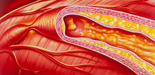Illustration of coronary artery atherosclerosis