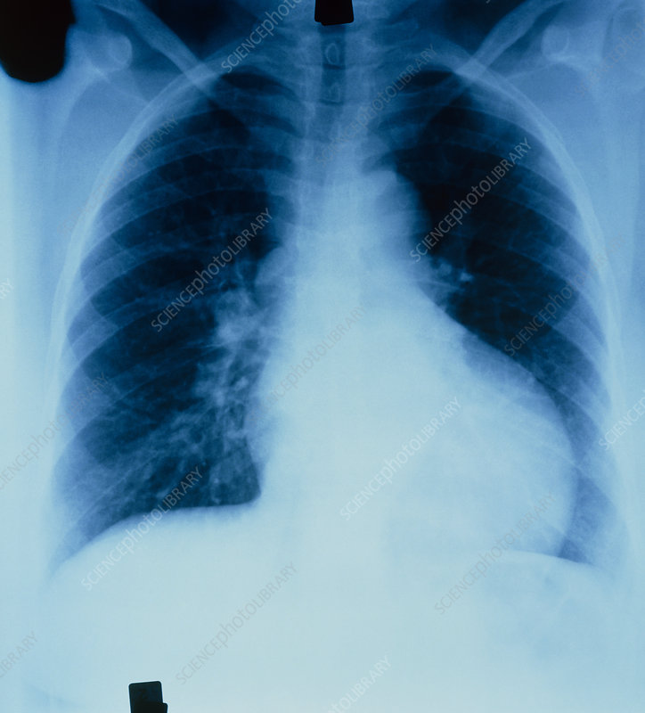 X-ray of heart with left ventricular enlargement