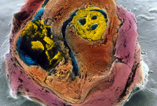 Colour SEM of atherosclerosis in coronary artery