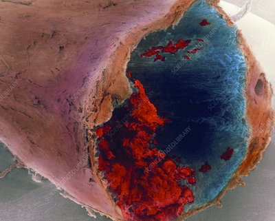Coloured SEM of a blood clot in coronary artery