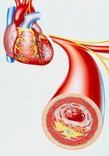 Illustration of heart with coronary thrombosis