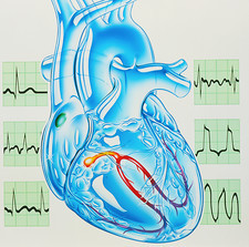 Artwork of cardiac arrhythmia with heart & ECGs