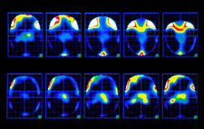 Colour PET brain scans showing pain during angina