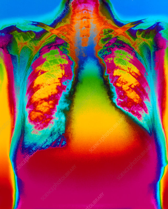Colour X-ray of heart showing ventricular failure