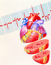 Artwork of heart & ECG trace in heart failure