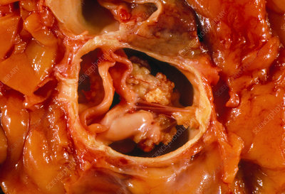 Gross specimen of a sub-aortic stenosis in heart