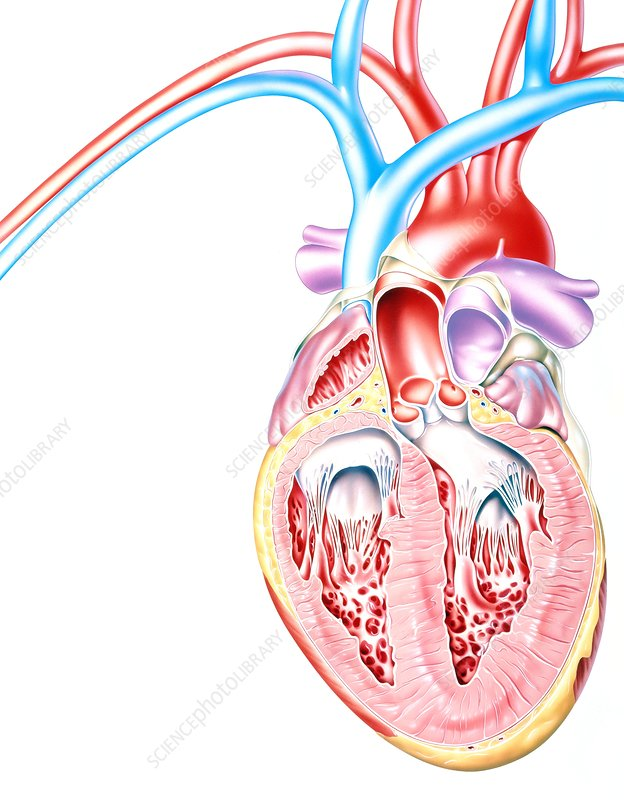 Artwork of heart in congestive heart failure