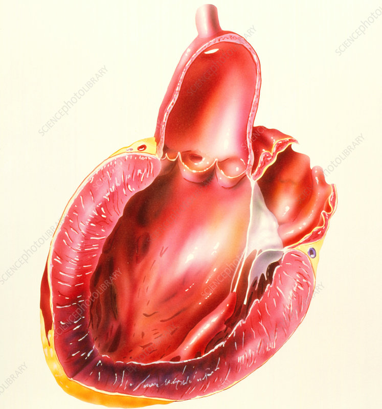 Illustration of heart after myocaridal infarction