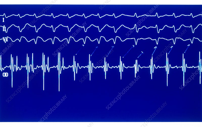 Heart Rate Irregularities Synthroid