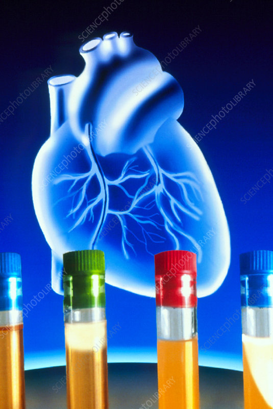 Artwork of heart with test tubes of cholesterol