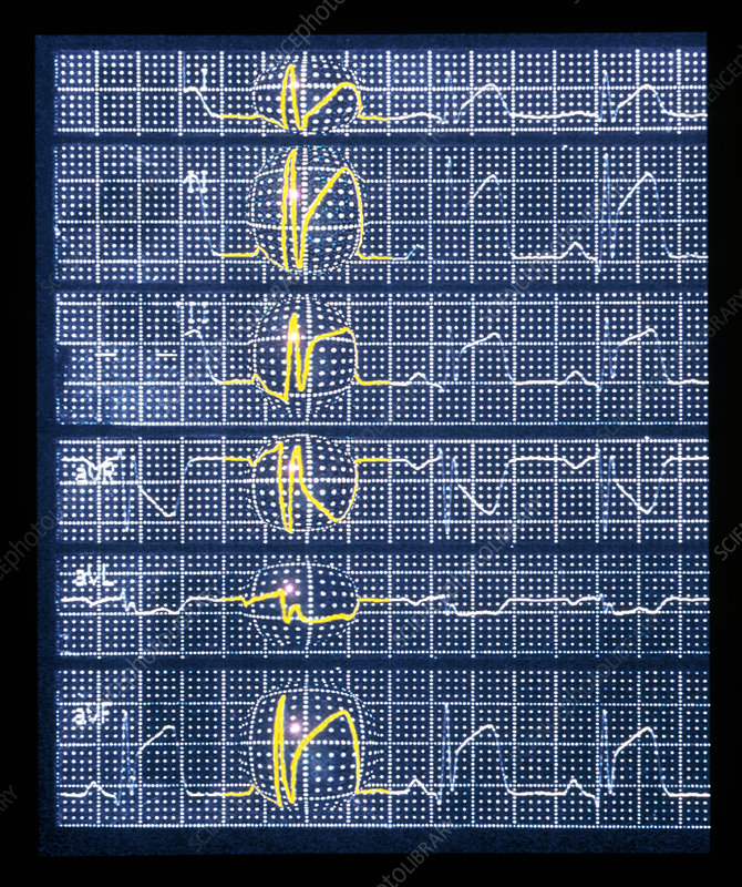 ECG showing myocardial infarction or heart attack