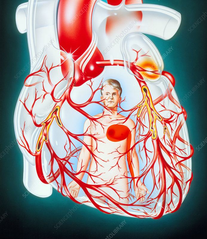 Illustration of heart showing the cause of angina