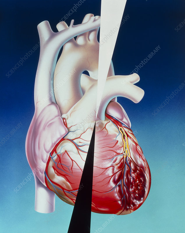 Artwork of heart attack due to atherosclerosis