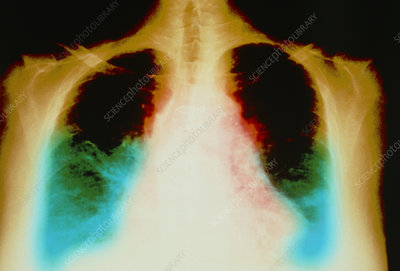 Heart failure, X-ray