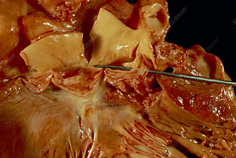 Heart valve bacterial infection