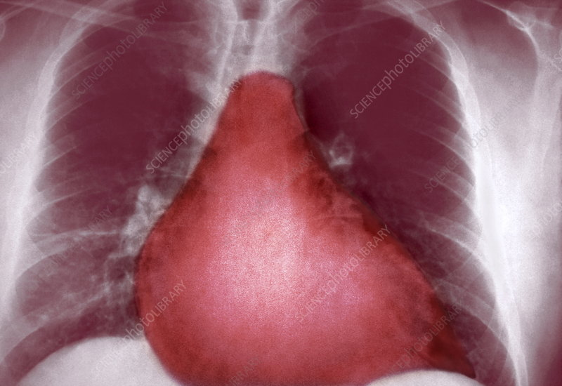Enlarged heart, X-ray