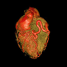 Enlarged coronary arteries