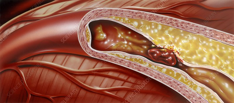 Blocked coronary artery, artwork