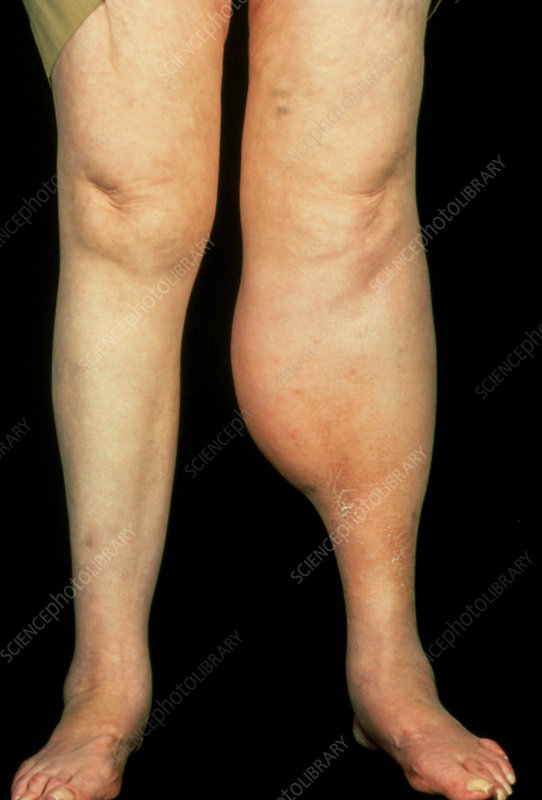 Woman with swollen left calf due to DVT.
