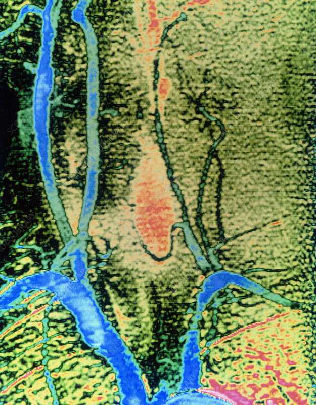 Arteriograph showing occlusion of carotid artery