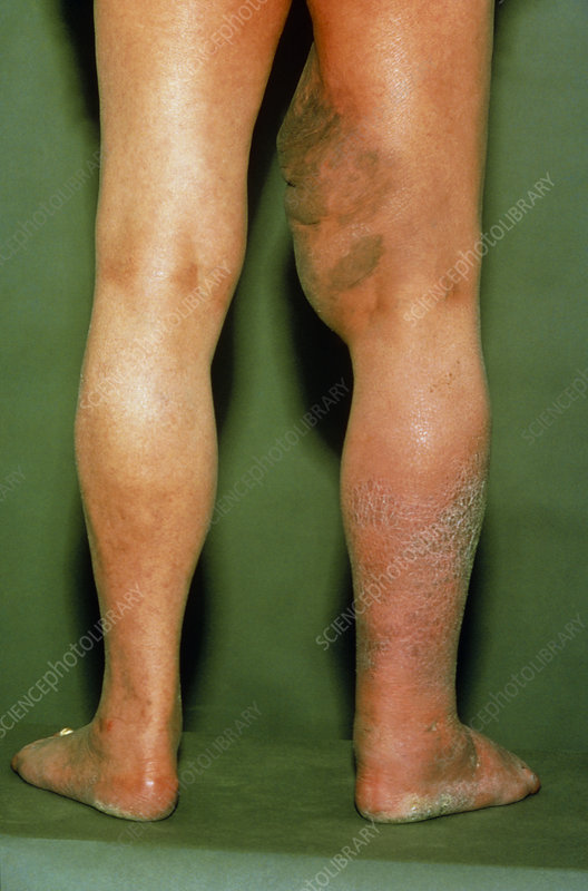 Thrombosis in leg