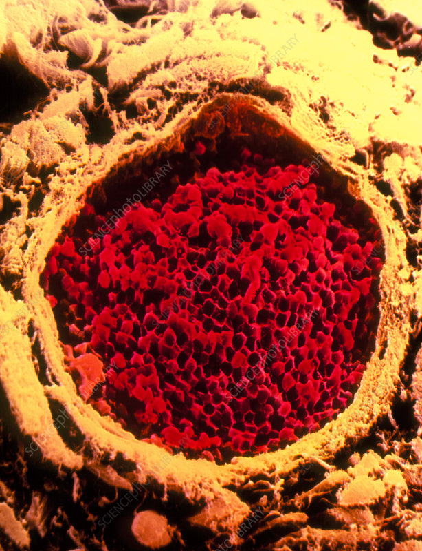 Coloured SEM of occluded blood vessel in lung