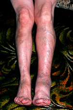 Patient's leg affected by deep vein thrombosis