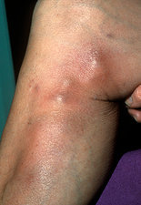 Phlebitis on the leg with thrombosis