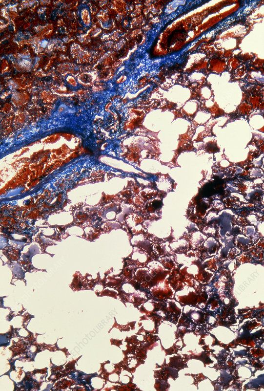 Light micrograph of lung infarction