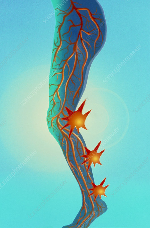 Artwork of peripheral vascular disease in leg