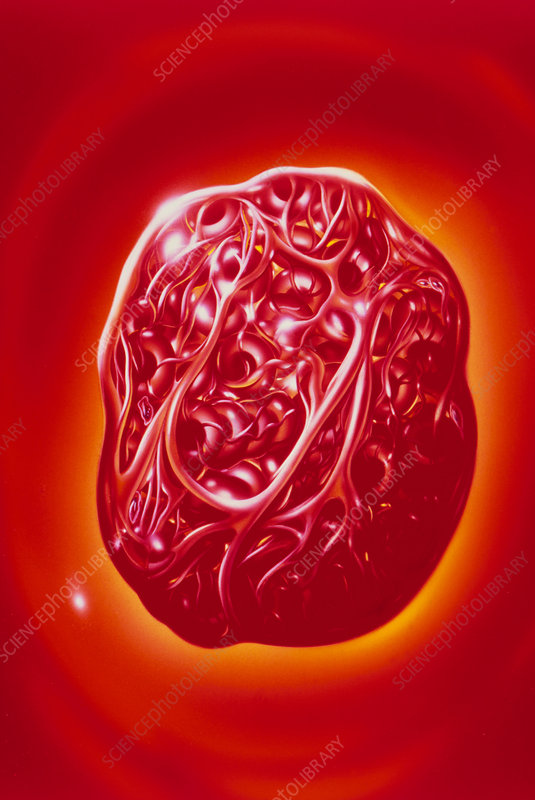 Illustration of blood cells & fibrin in a thrombus