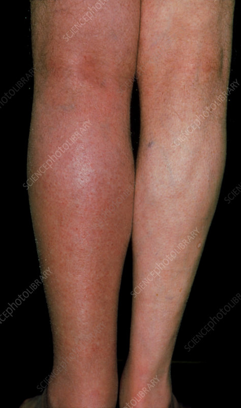 Deep vein thrombosis in the left leg of a patient