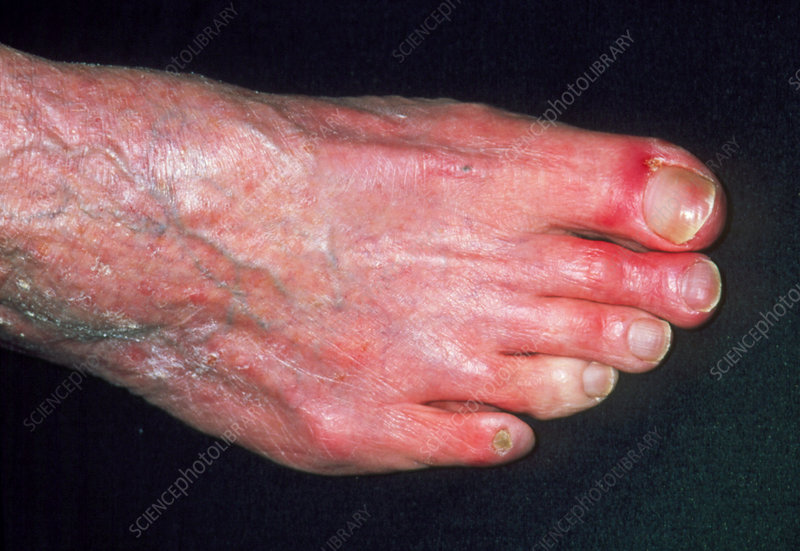 Peripheral vascular disease causing cold 4th toe