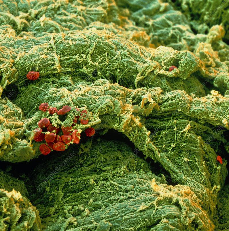 Coloured SEM of an atheroma in an artery